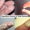 BEGINI CIRI_CIRI KEPUTIHAN NORMAL DAN TIDAK NORMAL!!!